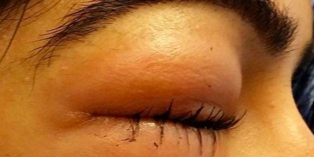 So sieht ihr Auge nach dem Nase putzen aus.