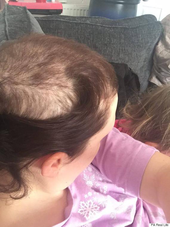 hair pulling
