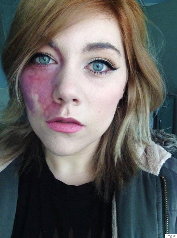 birthmark lady