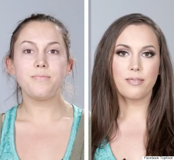 acne transformations