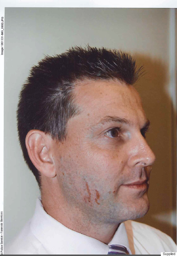 gerard baden clay scratch face