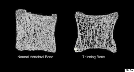 thinning bone