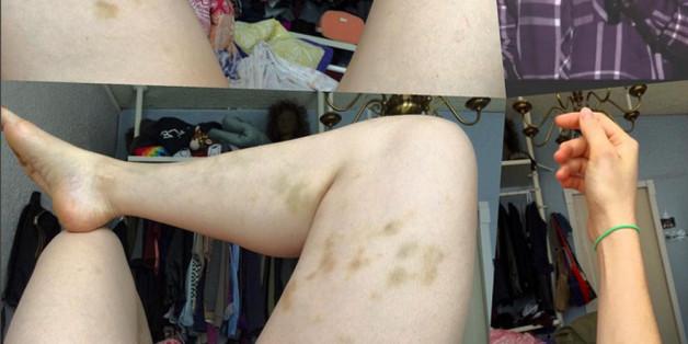 Beth Stellings Beine sind übersät von blauen Flecken