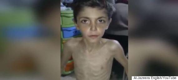 starving children syria