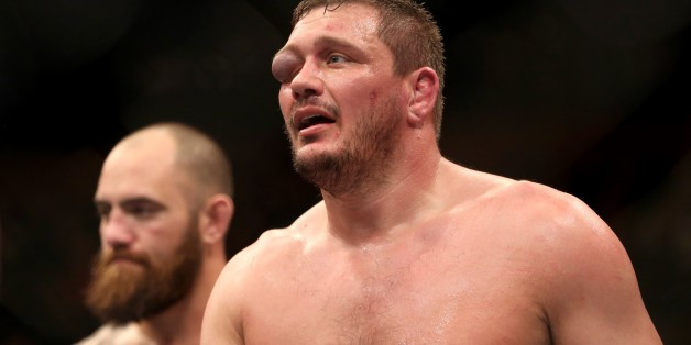 Matt Mitrione's damaged eye is seen after his bout with Travis Browne in their mixed martial arts bout at UFC Fight Night 81, Sunday, Jan. 2, 2016, in Boston. Browne won via third round TKO.  (AP Photo/Gregory Payan)