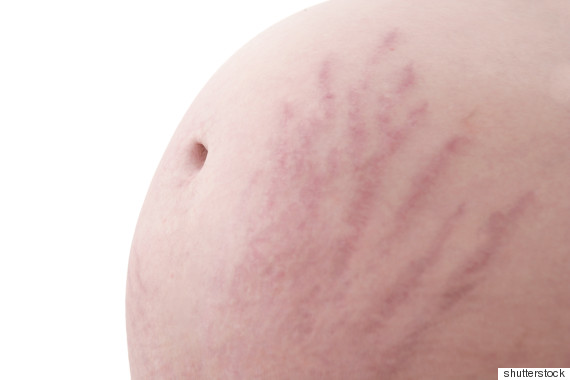 How To Get Rid Of Stretch Marks On Breasts Naturally