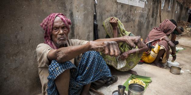 Ein Mann mit Lepra - man glaubt, diesen Anblick gibt es nicht mehr. Doch weit gefehlt.