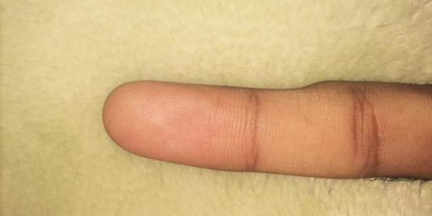 Tausende Menschen entdecken diese Delle an ihrem kleinen Finger- und glauben den Grund zu kennen