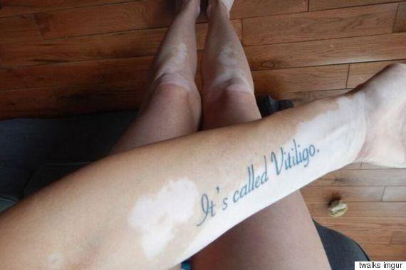 vitiligo tattoo