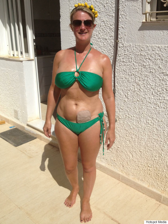 Suzanne Dore Blogger With Bowel Cancer Shares Colostomy Fashion