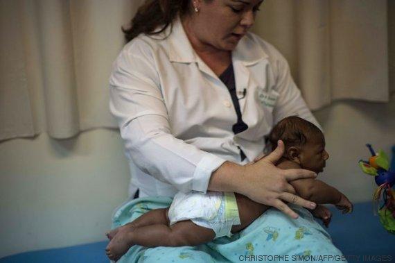 dra e bebê com microcefalia