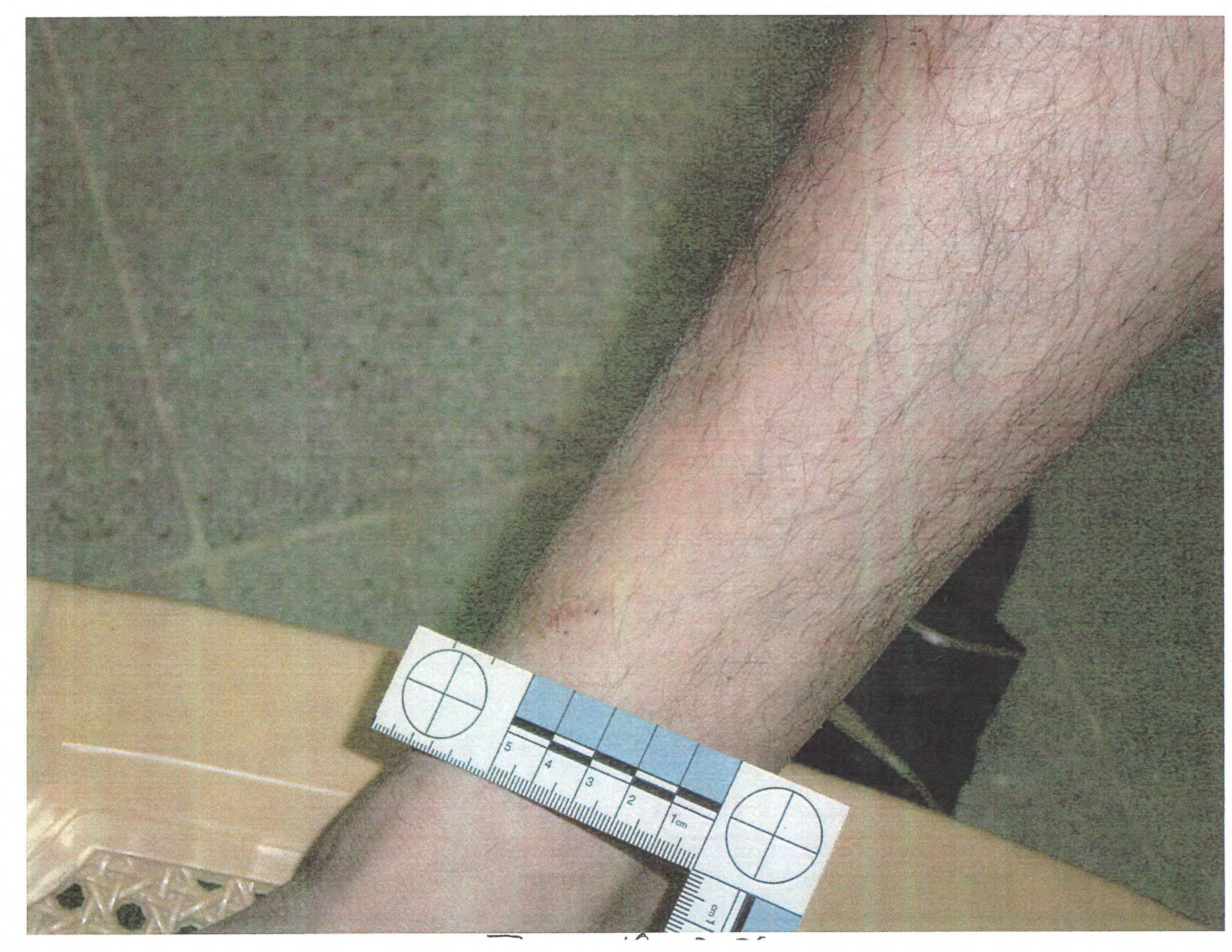 pentagon detainee abuse photos 2016