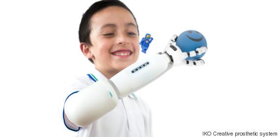 iko creative prosthetic system