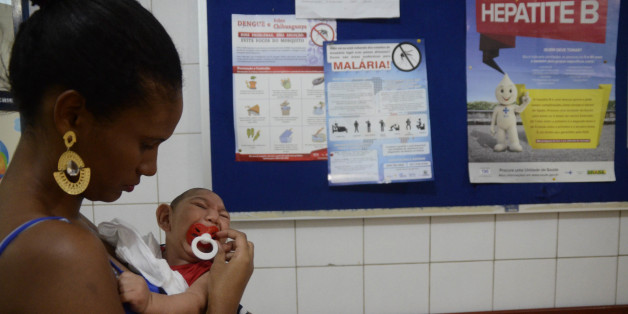 RECIFE, BRAZIL - FEBRUARY 01:  João Heitor baby born with microcephaly is held by his mother Gabrielly Santana da Paz  as they wait to see a doctor at Oswaldo Cruz Hospital on February 1, 2016 in Recife, Brazil.  Health officials believe as many as 100,000 people have been exposed to the Zika virus in Recife, although most never develop symptoms. In the last four months, authorities have recorded around 4,000 cases in Brazil in which the mosquito-borne Zika virus may have led to microcephaly