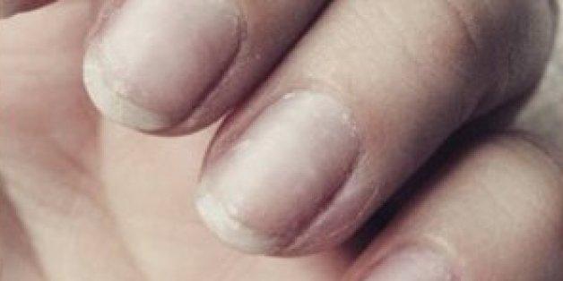 Wenn eure Fingernägel so aussehen, solltet ihr sofort zum Arzt gehen