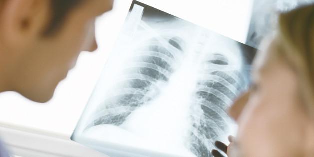 Lunge, Röntgenbild