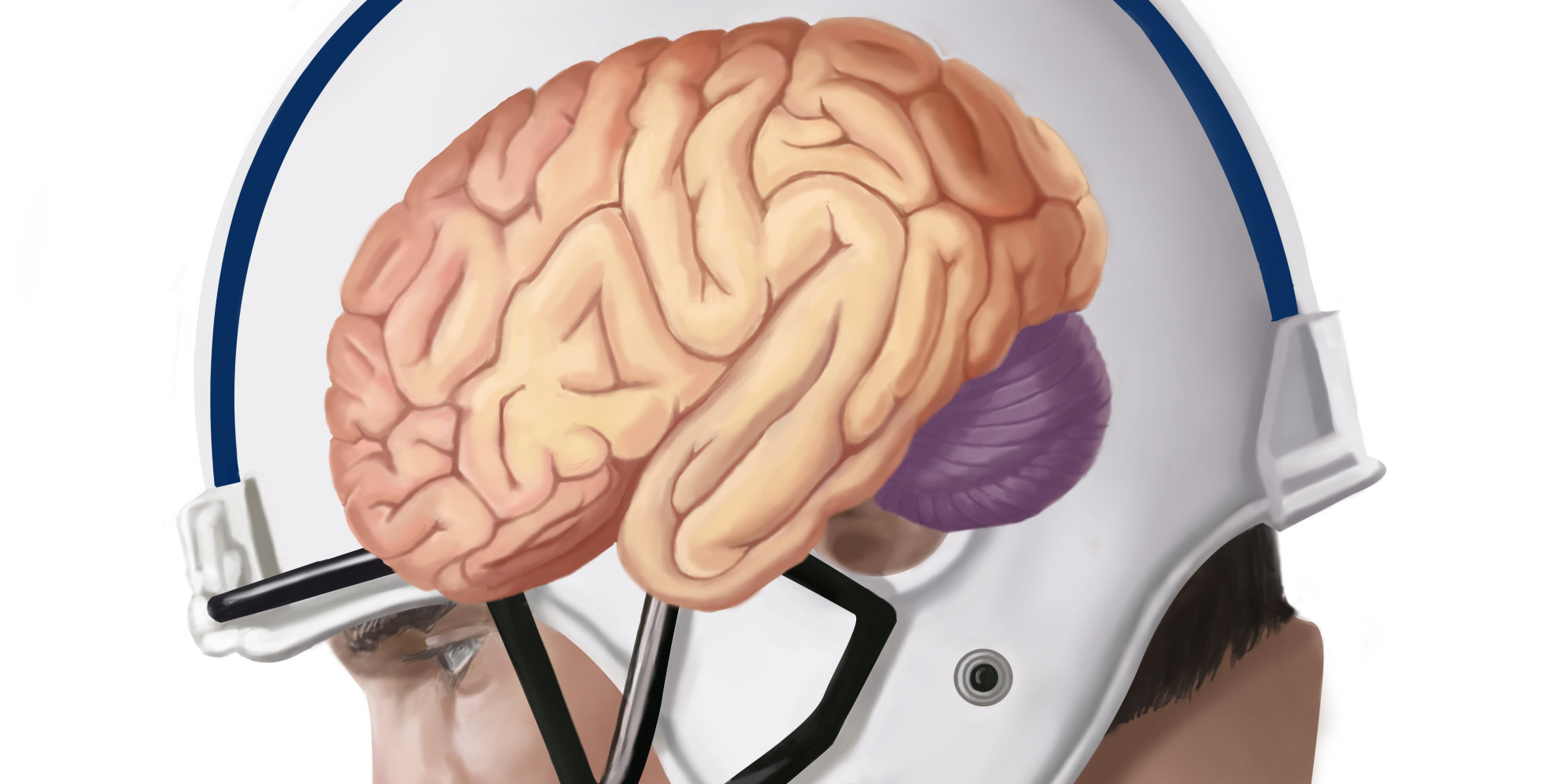 Concussions: What We Choose to Ignore   HuffPost