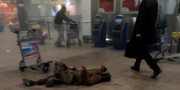 Ein Verletzter nach den Anschlägen am Brüsseler Flughafen