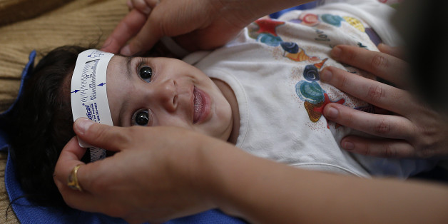 Three-month-old Esther Kamilly has her head measured by Brazilian and U.S. health workers from the United States' Centers for Disease Control and Prevention (CDC) at her home in Joao Pessoa, Brazil, Wednesday, Feb. 24, 2016, as part of a study to determine if the Zika virus is causing babies to be born with a birth defect affecting the brain. Their goal is to persuade about 100 mothers of infants recently born with the defect as well to enroll in the study. They also need participation as contro