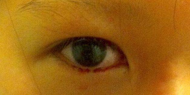 Ein Mädchen weinte blutige Tränen - weil es einen alltäglichen Fehler machte