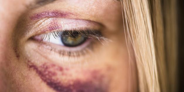 Ein 14-jähriges Mädchen in Geldern wurde Opfer eines brutalen Überfalls