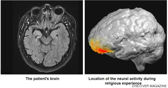 neuroimagen