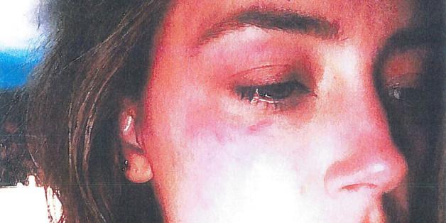 Häusliche Gewalt: Johnny Depp soll Amber Heard diese Verletzungen zugefügt haben