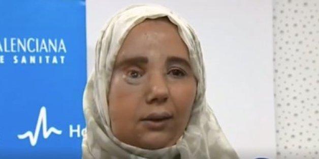 La nouvelle vie de Samira Benhar, la Marocaine sauvée par un chirurgien espagnol
