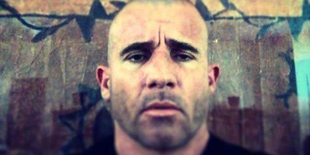 L'acteur de Prison Break déplore l'état des hôpitaux marocains après son accident