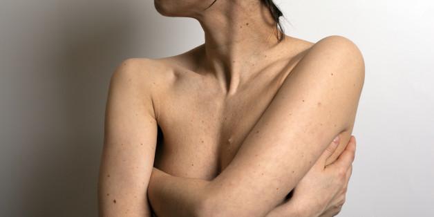 Viele Menschen vernachlässigen regelmäßige Vorsorgeuntersuchungen beim Hautarzt