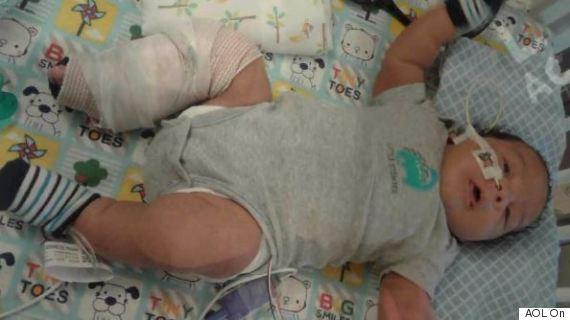 baby broken leg