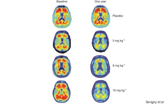 alzheimer traitement