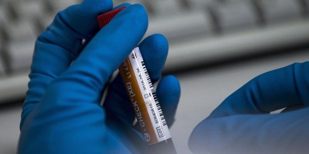 An employee of the Russia's national drug-testing laboratory holds a vial in Moscow, Russia, Tuesday, May 24, 2016. The Russians have been accused of state-sponsored doping at the 2014 Sochi Olympics, and the IOC has asked WADA to carry out a full-fledged investigation and plans to retest Sochi samples. (AP Photo/Alexander Zemlianichenko)
