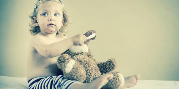 Gegen masern gibt es Impfungen - trotzdem sterben weltweit immer noch 400 Kinder täglich an der Infektionskrankheit
