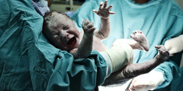 Kaiserschnitte haben einen massiven Einfluss auf die Entwicklung der Menschheit - das ist der Grund