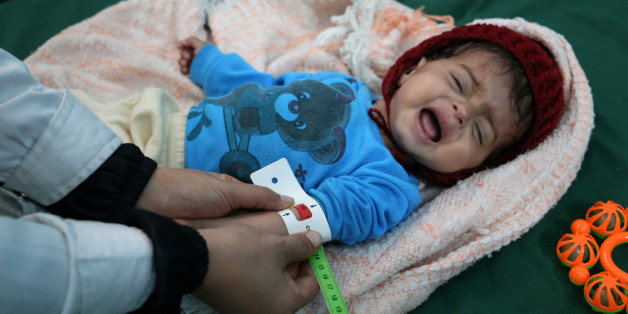 A malnourished Yemeni boy is attended to at a therapeutic feeding centre in the country's third-largest city of Taez, on December 17, 2016.The UN children's agency UNICEF says nearly three million people in Yemen need immediate food supplies, while 1.5 million children are suffering from malnutrition, including 370,000 with severe malnutrition that weakens their immune system. / AFP / Ahmad AL-BASHA        (Photo credit should read AHMAD AL-BASHA/AFP/Getty Images)