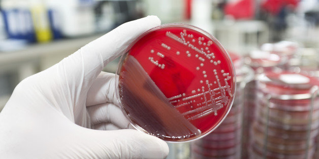 A hand with a medical glove is holding a agar plate with a culture of a pathogenic bacteria.