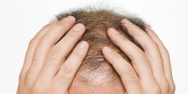 Balding, to become bald