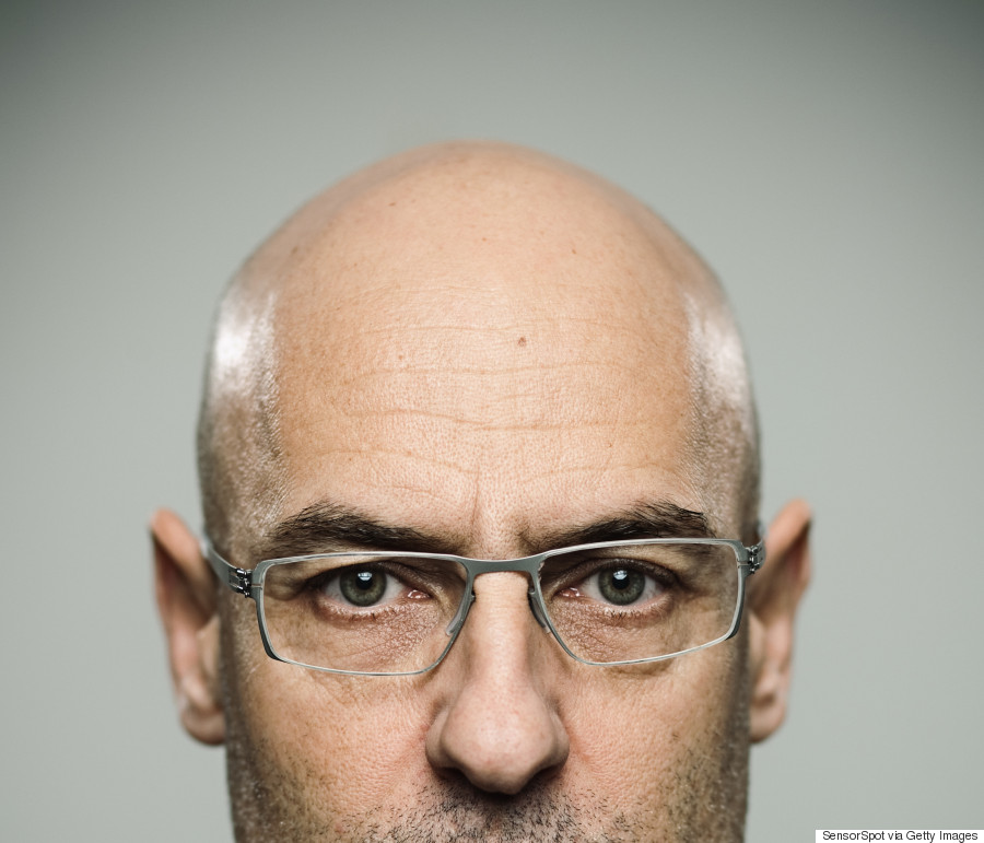 these types of men are more likely to go bald according to new