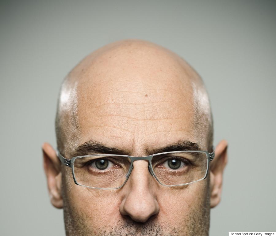 Hair loss - Wikipedia