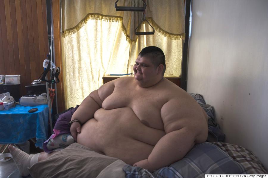 Homme Le Plus Gros Du Monde l'homme le plus gros du monde subira bientôt une chirurgie qui