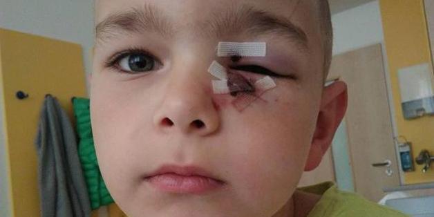 Der siebenjährige Marlon wurde am linken Auge verletzt