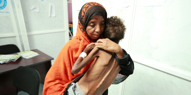 A woman carries her son Imran Faraj, 8 year-old, who is suffering from malnutrition at a hospital in the Red Sea port city of Hodeidah June 13, 2017. REUTERS/Abduljabbar Zeyad