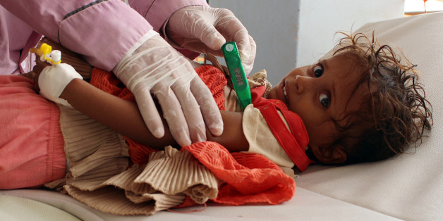 TOPSHOT - A Yemeni child suspected of being infected with cholera is checked by a doctor at a makeshift hospital operated by Doctors Without Borders (MSF) in the northern district of Abs in Yemen's Hajjah province , on July 16, 2017.