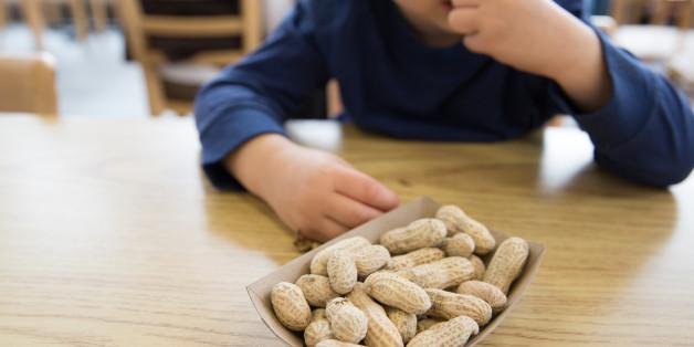 Eine neue Therapie gibt Erdnussallergikern Hoffnung auf Heilung.