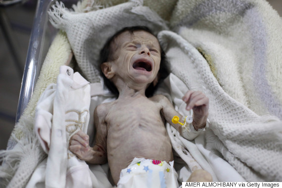 syrian infant
