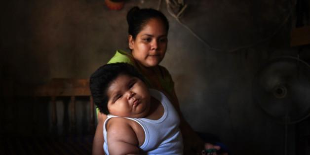 Luis wird mit 3,5 Kilo geboren - 10 Monate später wiegt er fast 10 mal so viel