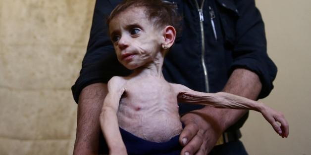 Hala al-Nufi, zwei Jahre alt, Kind in Ghuta.