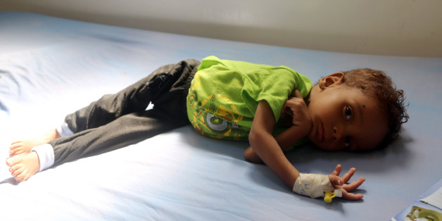 A malnourished Yemeni child receives treatment at a hospital in the Yemeni port city of Hodeidah, on November 21, 2017. The United Nations has warned that war-wracked Yemen faces a mass famine unless aid deliveries are allowed to enter the impoverished country. Some 17 million Yemenis are in desperate need of food, seven million of whom are at risk of famine, according to UN figures. The UN said in August that more than 20 million people are at risk from famine in Yemen, Somalia, South Sudan and