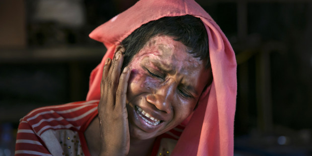 COX'S BAZAR, BANGLADESH - DECEMBER 02: Mumtaz Begum, 30, becomes emotional as she touches the wounds she received when the military set her house on fire after raping her, on December 2, 2017 in Cox's Bazar, Bangladesh. She fled to Bangladesh shortly after the August 25th attack from Tula Toli village in Myanmar. She fled to Bangladesh shortly after the August 25th attack. She says that one night the military attacked her village and burned homes. Everyone ran and hid but the military found them